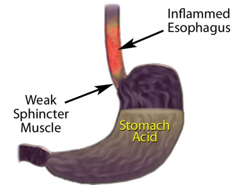 Heartburn Acid Reflux