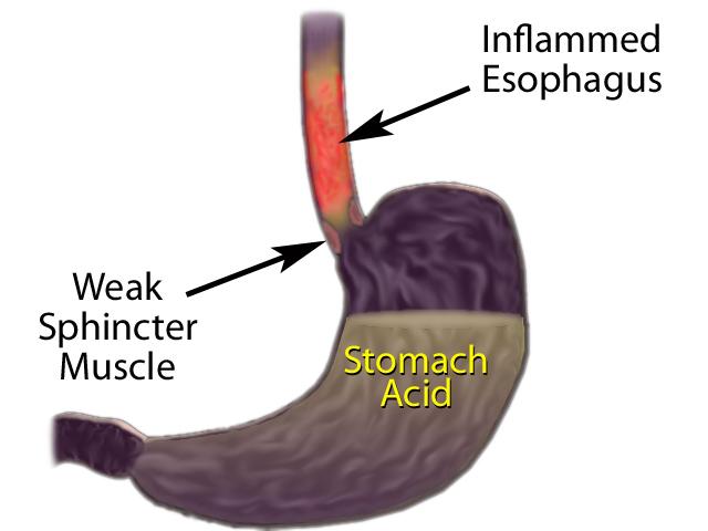 Acid Reflux/Heartburn